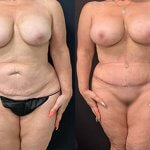 before-after-mommy-makeover-liposuction