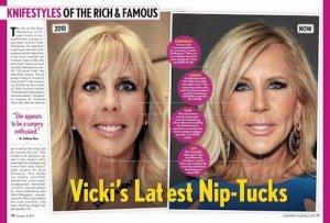 Knife-Styles-Vicki-Gunvalson-plastic-surgery