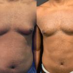 male-chest-lipo