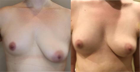 before-after-female-breast-boost