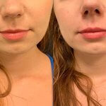 before-after-female-lips-filler