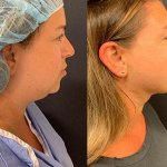 before-after-neck-chin-liposuction