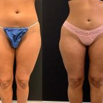 before-after-female-thighs-liposuction