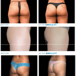 emsculpt-before-after-butt-lift