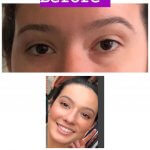 before-after-eyes-filler