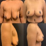 before-after-breast-lift