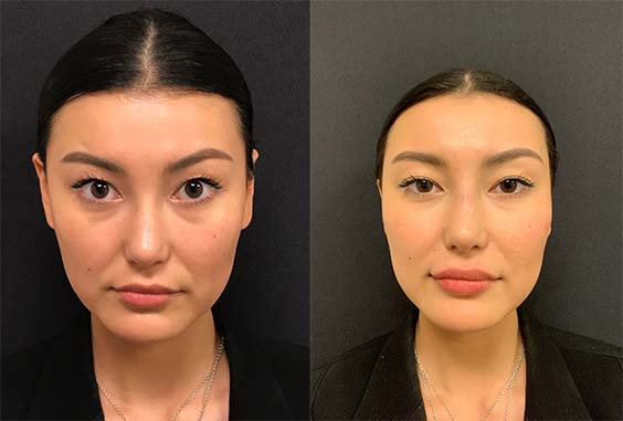 before-after-lip-filler