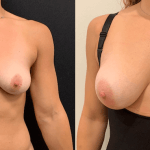 female-breast-boost