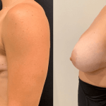 before-after-breast-boost