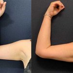before-after-arm-liposuction