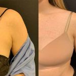 before-after-female-armpit-liposuction