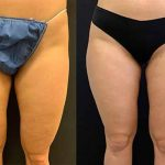 before-after-female-inner-thighs-liposuction