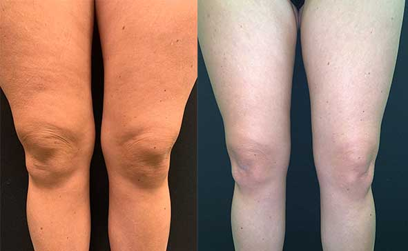 Before Amp After Knee Liposuction Neinstein Plastic Surgery