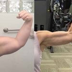 before-after-mini-arm-lift