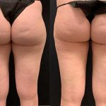 before-after-female-outer-thigh-liposuction