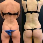 before-after-female-waist-liposuction