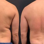 before-after-male-back-waist-liposuction