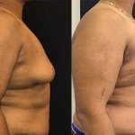 before-after-male-chest-liposuction