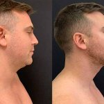 before-after-male-neck-chin-liposuction