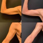 before-after-female-arm-liposuction