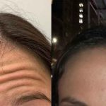 before-after-female-forehead-botox