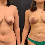 before-after-female-breast-lift