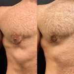 before-after-male-chest-liposuction-nipple-reduction