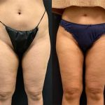 before-after-female-inner-outer-thigh-