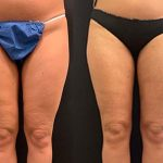 before-after-female-inner-thighs-knees-liposuction