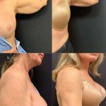 before-after-female-mini-arm-lift