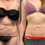 before-after-female-abdominal-liposuction