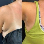 before-after-female-armpit-liposuction-excision-breast-tissue