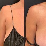 before-after-female-bra-bulge-liposuction