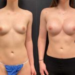 before-after-female-breast-augmentation-implants