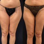 before-after-female-thigh-liposuction