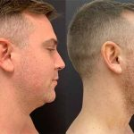 before-after-male-neck-liposuction