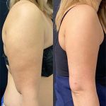 before-after-female-arms-liposuction