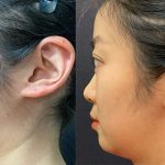 before-after-female-neck-liposuction
