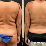 before-after-back-lipo-min