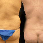 nps-before-after-back-waist-min