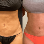 nps_before-after-lipo-revision