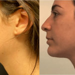 nps_before-after-neck-min