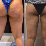 nps_before-after-thigh-lipo-min
