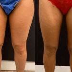 nps_before-after-thighs-min