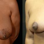 nps_dr-funderburk-breast-reduction