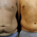 nps_dr-funderburk-male-abdominoplasty-min