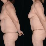 nps_funderburk-abdominopasty-profile-min