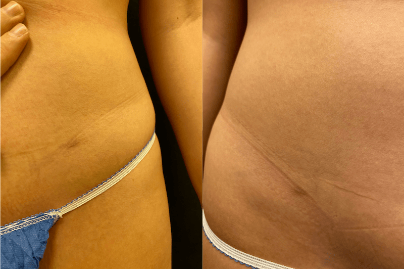 skinuva-before-after-min