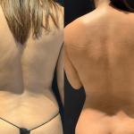 before-after-waist-min