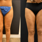 nps-before-after-thigh-lipo-min